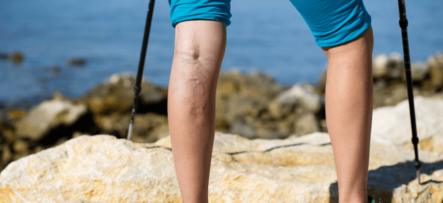 a hiker with varicose and spider veins - Palisades Vein Center