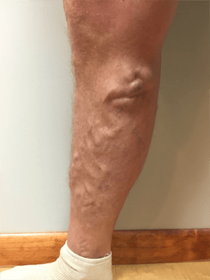Palisades Vein Center Large Varicose Veins