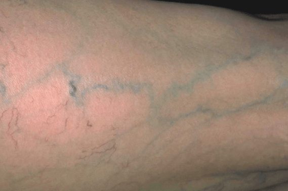 Palisades Vein Center Reticular Veins - Thigh