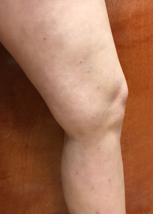 patient after vein treatment