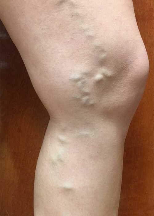 patient before vein treatment - Palisades Vein Center