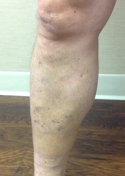 a leg after being treated for varicose veins