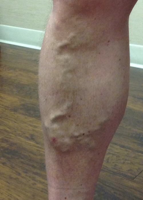 a man's leg with large varicose veins - Palisades Vein Center