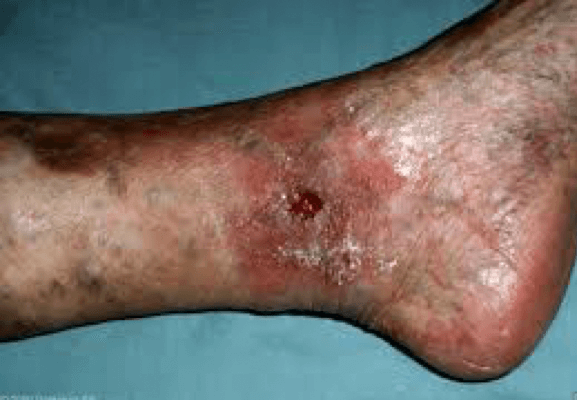 Palisades Vein Center Chronic Venous Insufficiency Resulting in Ulcer