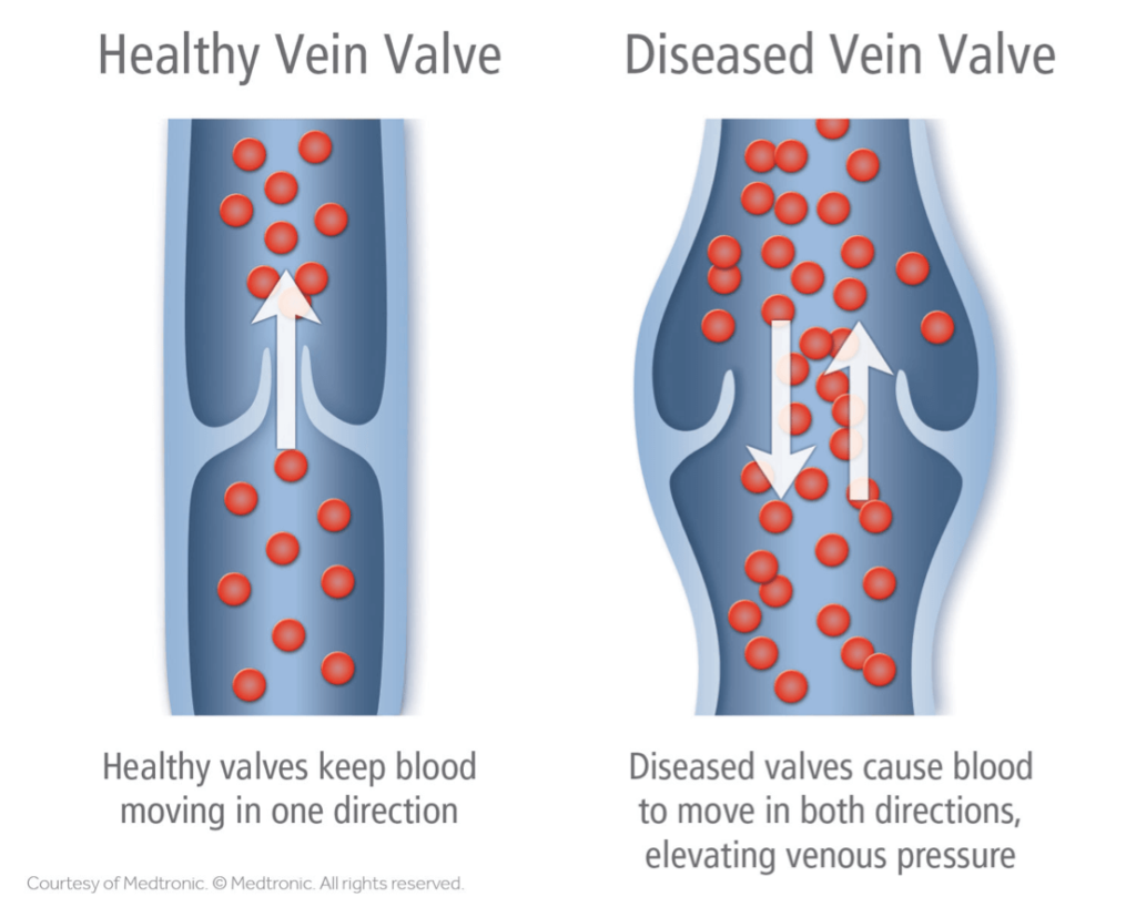 Palisades Vein Center Difference Between Healthy and Unhealthy Vein Valve