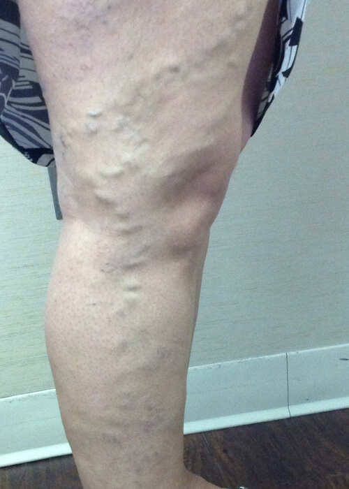 Palisades Vein Center- after vein treatment