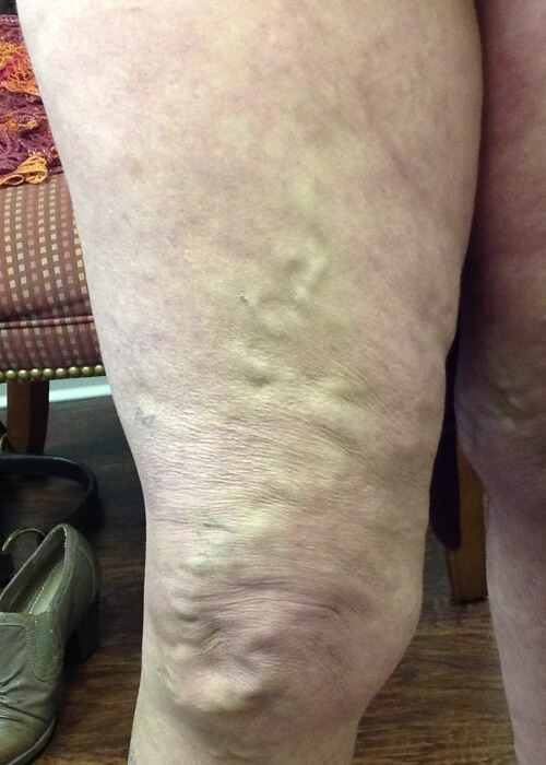 Palisades Vein Center- before treatment of veins