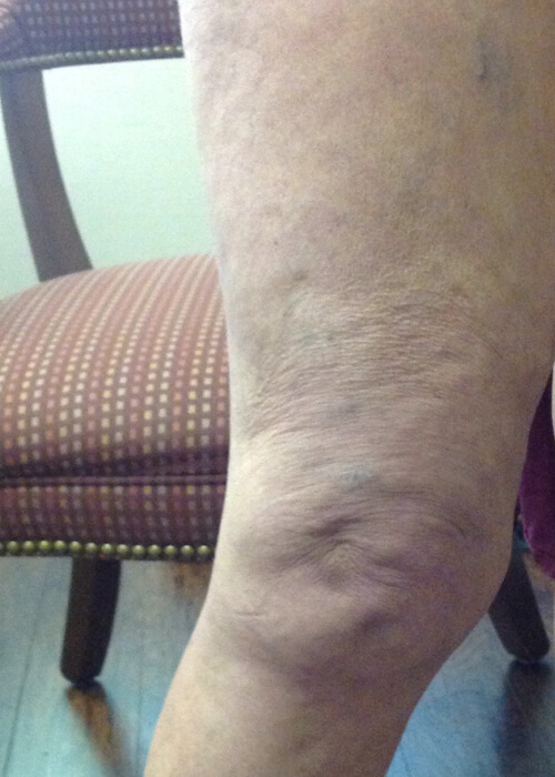 after treatment of veins