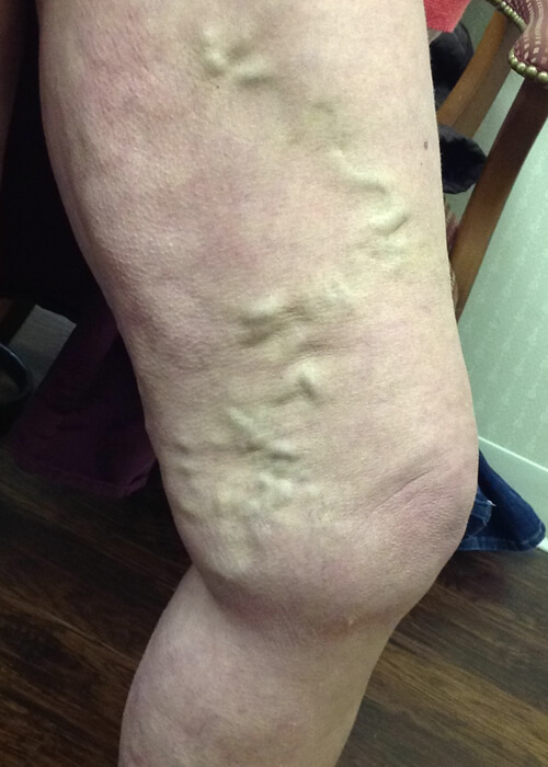 leg before treatment of visible veins