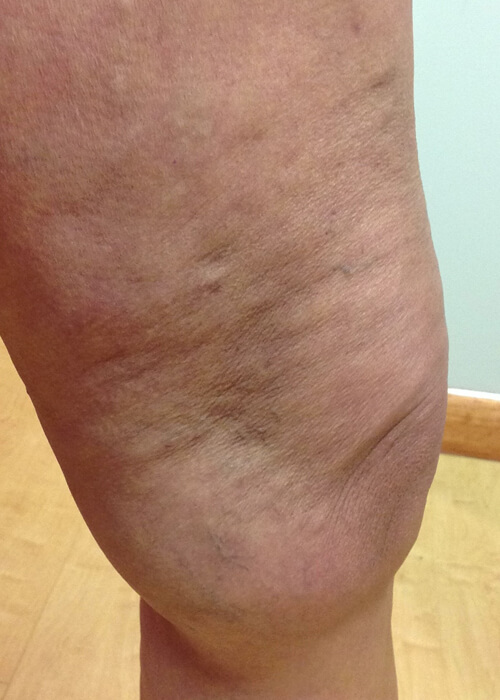 leg after treatment for visible veins