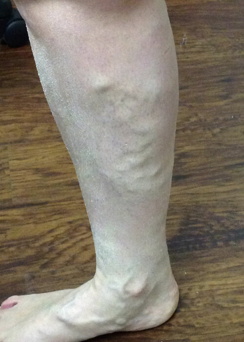 Palisades Vein Center- leg before vein treatment