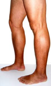 Palisades Vein Center- tanned legs with visible varicose veins